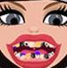 女孩牙齒改造